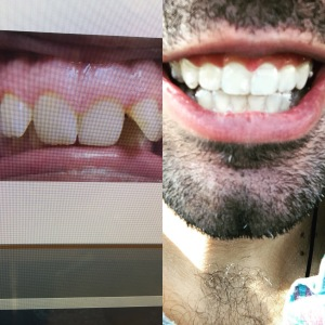 Before and After Invisalign. 21 trays.